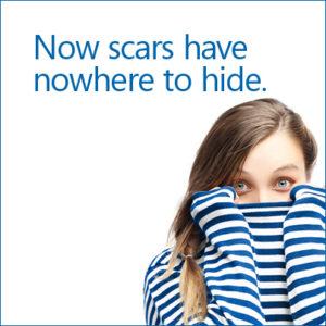 scar creams toronto